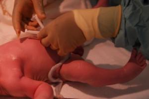 Naukowcy: późniejsze zaciskanie pępowiny korzystne dla noworodków