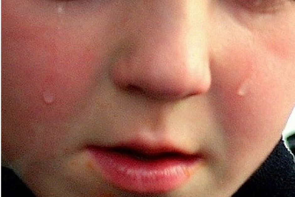 Zaburzenia psychologiczne u dzieci chorych na raka w początkowej fazie leczenia
