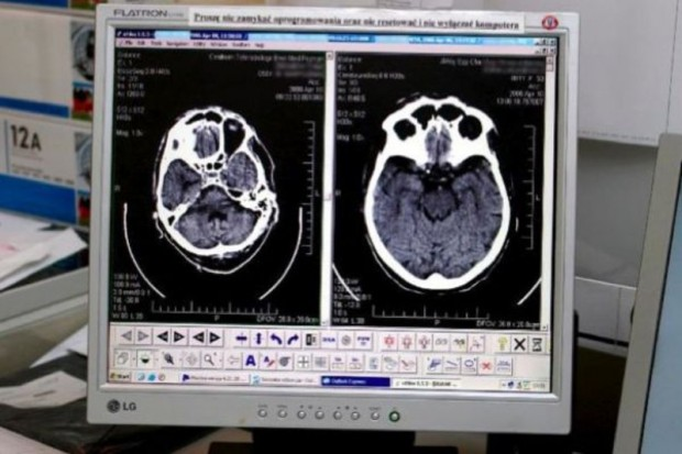 Sosnowiec: nowy tomograf trafił do szpitala miejskiego