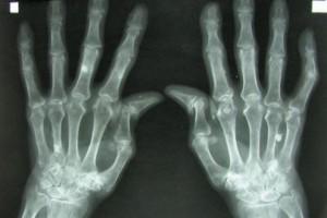 Wczesna diagnoza = skuteczność leczenia chorób reumatologicznych