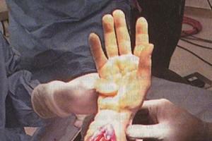 W Turcji amputowano mężczyźnie przeszczepioną nogę, zachował ręce