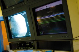 Pomorskie: PCT wstrzymuje wysokospecjalistyczne zabiegi embolizacji