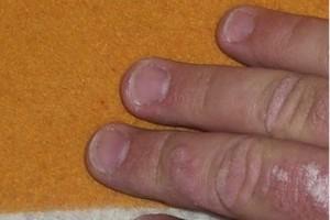Badania: nowoczesne leczenie łuszczycy zapobiega zawałom i udarom