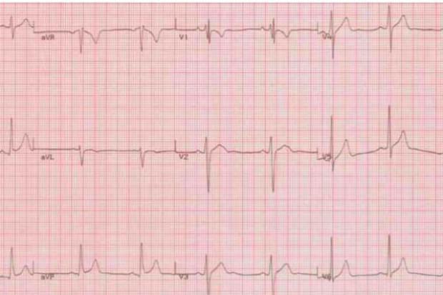 Reminiscencje kardiologiczne z Pomorza. Co wykazała kontrola Ministerstwa Zdrowia