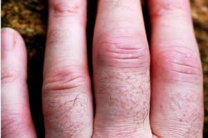 Nowe przeciwciało monoklonalne w leczeniu reumatoidalnego zapalenia stawów