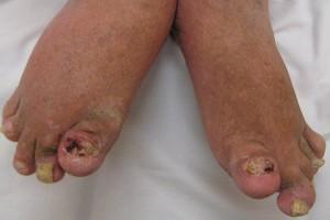 Skuteczność infliximabu z metotreksatem w leczeniu łuszczycowego zapalenia stawów