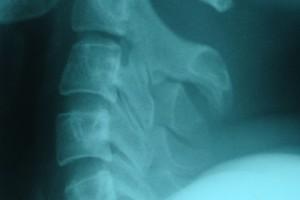 Osteosarcoma problemem również dorosłych