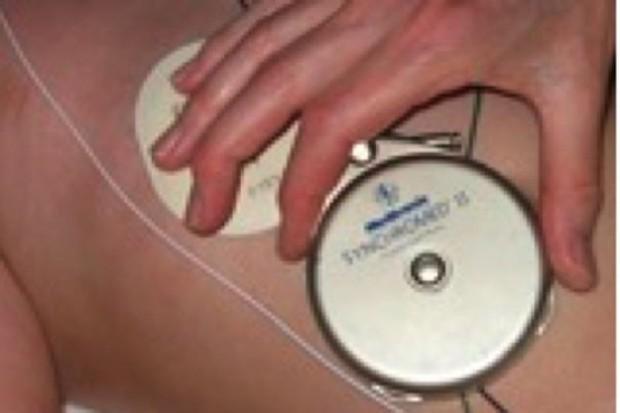 Pacjenci otrzymają pompy baklofenowe: zarządzenie prezesa NFZ - podpisane