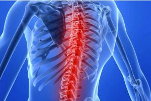 Terapia anty-TNF wpływa na obrót kostny u chorych na zesztywniające zapalenie stawów kręgosłupa
