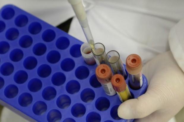 Polscy naukowcy opracowali związki, które mogą być skuteczne w leczeniu grzybic układowych