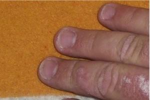 Chorzy na łuszczycę zabiegają o poparcie posłów dla leczenia biologicznego