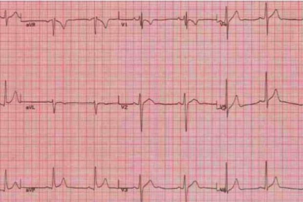 Ekspert: niski odsetek pięcioletnich przeżyć w niewydolności serca