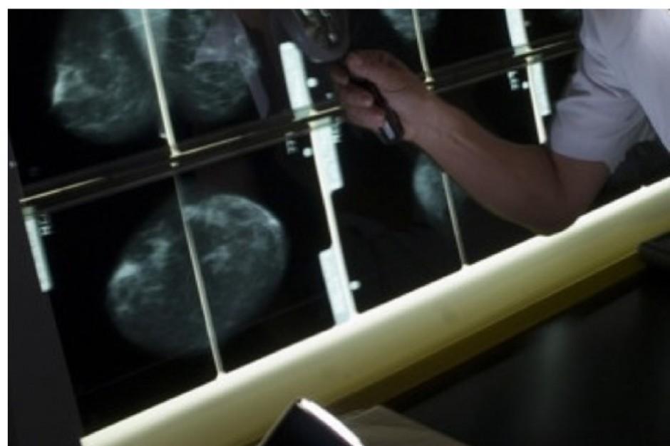 Białko MRE11 odpowiedzialne za większą złośliwość raka piersi