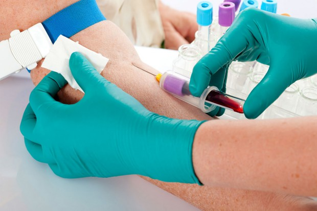 Postępy w leczeniu AIDS