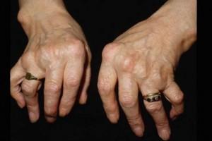 NFZ: protokół z posiedzenia Zespołu Koordynacyjnego ds. Leczenia Biologicznego w Chorobach Reumatycznych