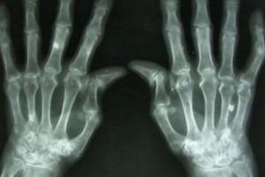Biosymilary w reumatologii - obawy i nadzieje
