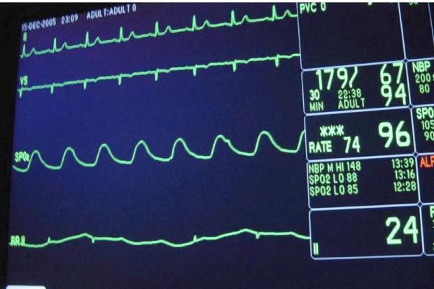 Rzeszów: w kardiologii inwazyjnej można leczyć bez kontraktu