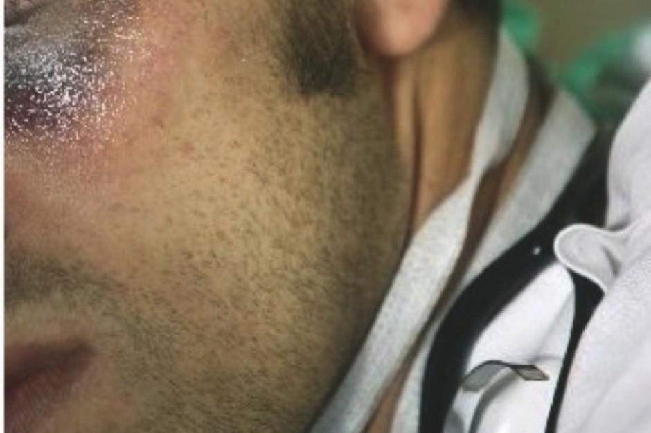 Warmińsko-mazurskie: pacjent pobił ratowników i lekarza