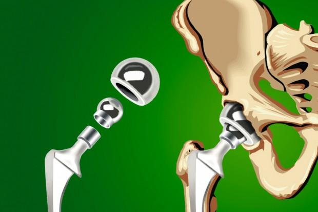 NFZ przedstawił dane dotyczące endoprotezoplastyki