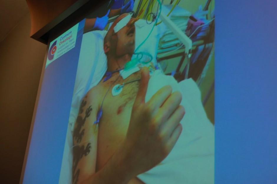 Pacjent dostał nową twarz. Pierwszy taki przeszczep w Polsce, pierwszy na świecie ze wskazań życiowych
