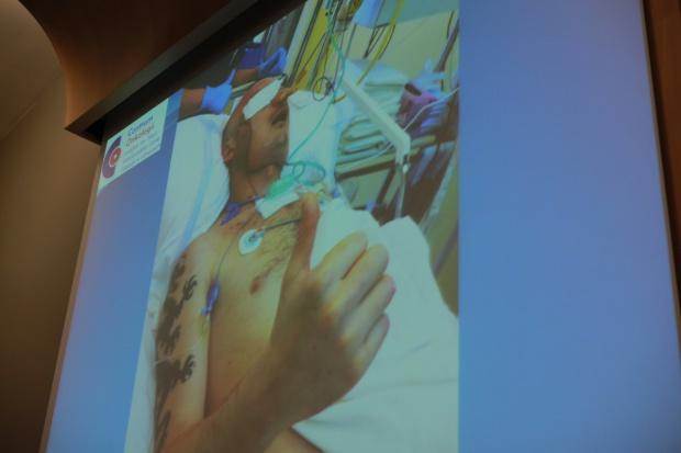 Gliwice: pacjent po przeszczepie twarzy opuścił OITM - mówi, uczy się połykać