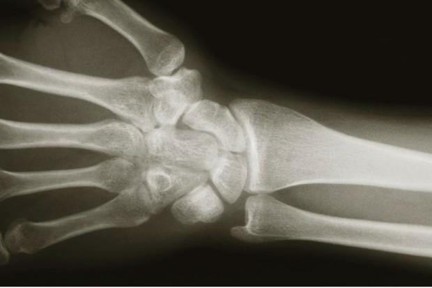 Prof. Wojciech Pluskiewicz: świadomość osteoporozy wciąż za mała
