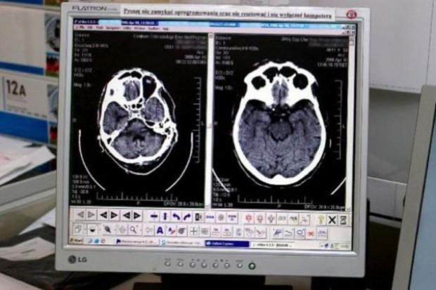 Koszalin: nowy tomograf w szpitalu chorób płuc