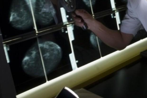 Dąbrowa Górnicza: mammobus przy centrum handlowym