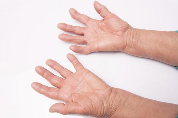Diagnozujmy od ręki