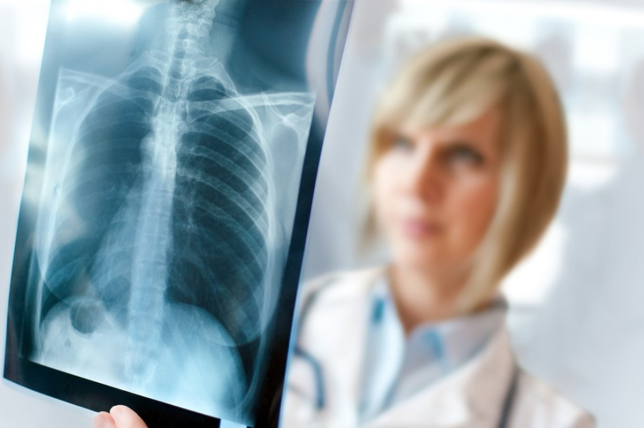 Śląskie: badania umożliwiające wczesne wykrycie raka płuc
