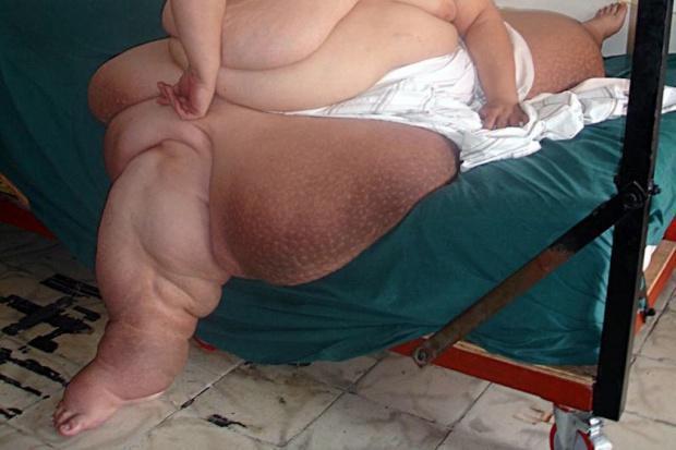 Mężczyzna ma 300 kg wagi, teraz walczą o jego życie