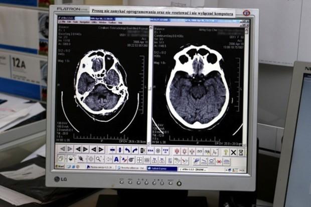 Augustów: spór o standardy badań tomograficznych