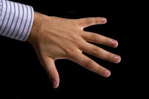 Po raz pierwszy wypróbowano bioniczną rękę, która czuje