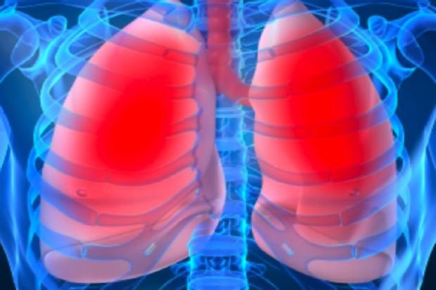 Warmia i Mazury: umieralność na raka oskrzeli i płuc - największa