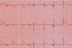 Tak chcą monitorować pracę serca