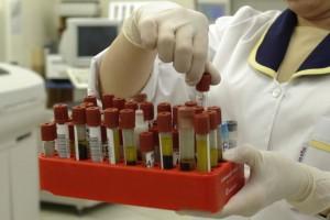 Diagnostyka laboratoryjna czeka cierpliwie w kolejkowym pakiecie