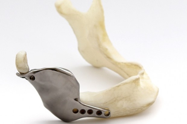 Tak powstawał tytanowy implant z drukarki 3D, wszczepiony pacjentowi