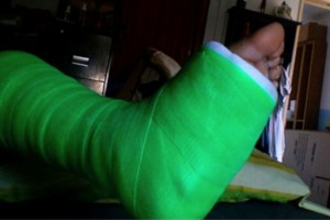 Koszalin: ortopedia przyjmie za miesiąc - były wypadki