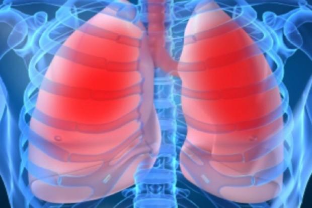 Akcja dla chorych na nadciśnienie płucne