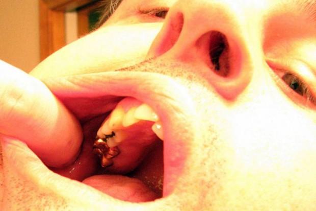 Wybity ząb można uratować