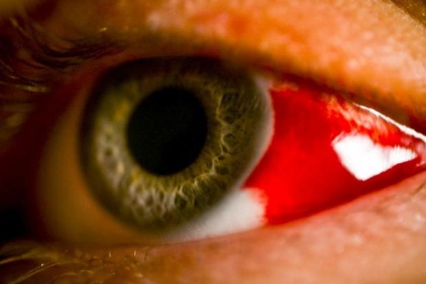 Co roku 2 tys. Polaków traci lub uszkadza wzrok z powodu urazów