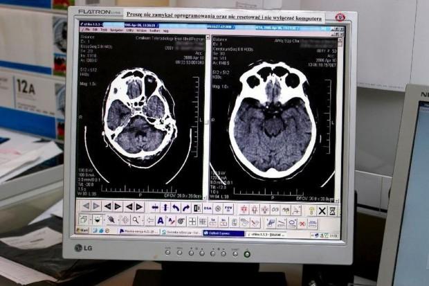 Ekspert: interwencyjne leczenie udaru mózgu szansą dla ciężko chorych