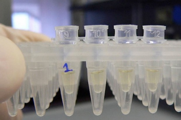 Lubczyn: bakterie E.coli na kąpielisku