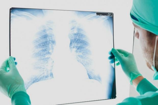 Rak piersi u mężczyzn: brakuje ekspertów, ośrodków, badań