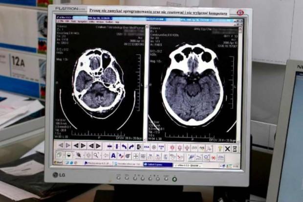 Rocznie nawet 90 tys. Polaków przechodzi udar mózgu