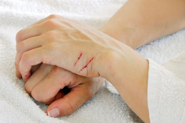 Zranienia - nadal nierozwiązany, ostry problem personelu medycznego