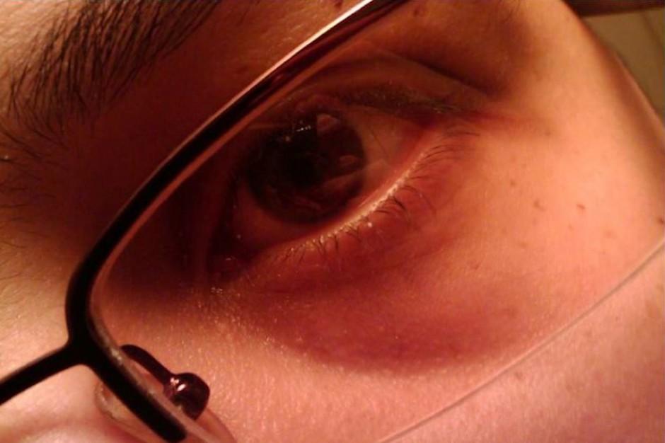 Małopolska: lata w kolejce do okulisty?