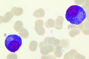 Ekspert o nowotworach krwi: największy postęp w leczeniu szpiczaka mnogiego