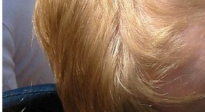 Eksperci: wczesne wykrycie nowotworów głowy i szyi to szanse na lepsze leczenie