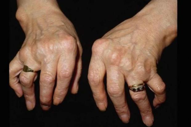 """Reumatologia: trwa kampania edukacyjna """"RZS - nie rezygnuj"""""""